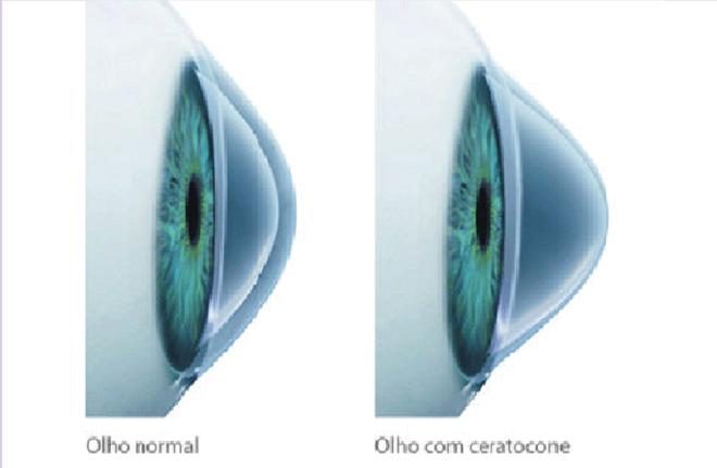 Dra. Fernanda Vieira   O Ceratocone