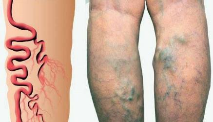 Fatores de risco para varizes que podem ser evitados